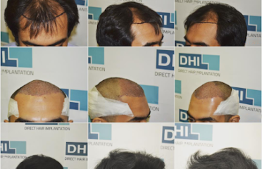 DHI Malaysia – Best Hair Transplant Clinic